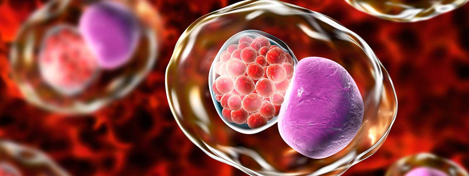 Chlamydia trachomatis y su relación con la infertilidad femenina | IVI GE